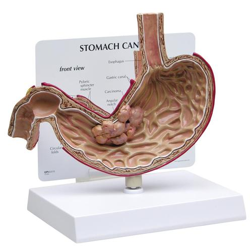 Stomach Cancer Model, 1019524, Digestive System Models