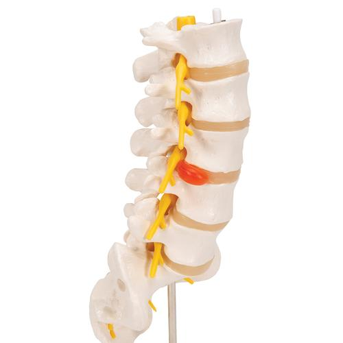 Human Lumbar Spinal Column Model with Dorso-Lateral Prolapsed Intervertebral Disc - 3B Smart Anatomy, 1000150 [A76/5], Vertebra Models