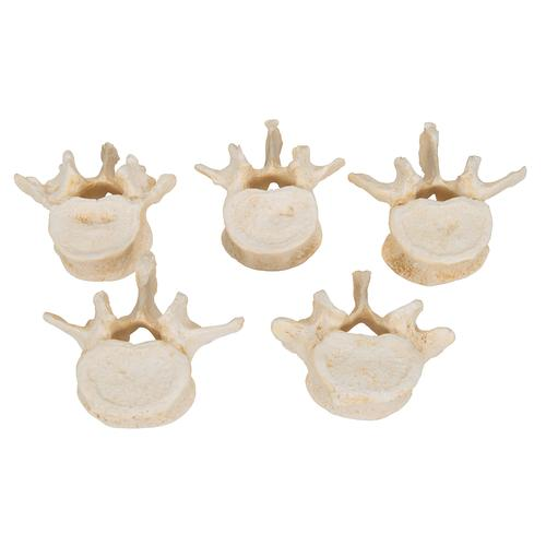 Set of  5 BONElike™ Lumbar Vertebrae - 3B Smart Anatomy, 1000155 [A792], Vertebra Models