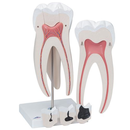 Giant Molar with Dental Cavities Human Tooth Model, 15 times Life-Size, 6 part - 3B Smart Anatomy, 1013215 [D15], Dental Models