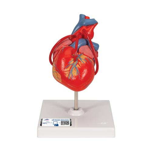 Classic Heart with Bypass, 2 part, 1017837 [G05], Human Heart Models