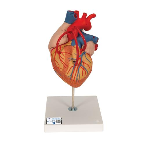 Human Heart Model with Bypass, 2 times Life-Size, 4 part - 3B Smart Anatomy, 1000263 [G06], Human Heart Models