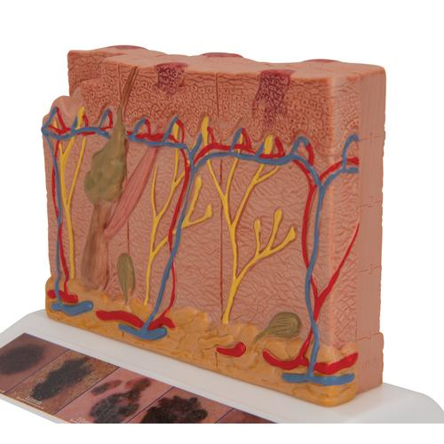 Skin Cancer Model with 5 stages, 8 times magnified - 3B Smart Anatomy, 1000293 [J15], Skin Models