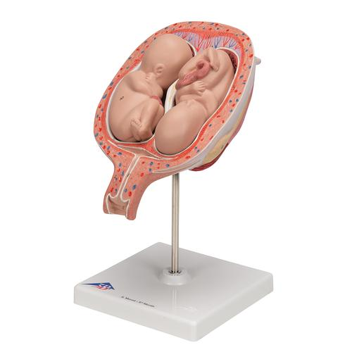 Twin Fetuses Model, 5th Month in Normal Position - 3B Smart Anatomy, 1000328 [L10/7], Pregnancy Models