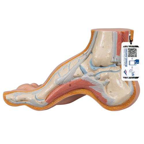 Hollow Foot (Pes Cavus) Model - 3B Smart Anatomy, 1000356 [M32], Joint Models