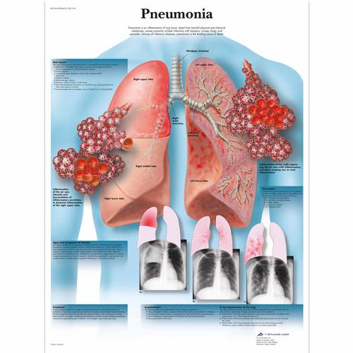 Pneumonia Chart, 1001518 [VR1326L], Parasitic, Viral or Bacterial Infection