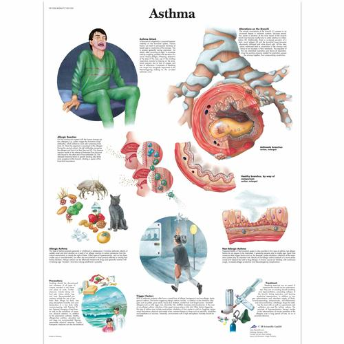 Anatomical Charts and Posters - Anatomy Charts - Asthma Paper Chart
