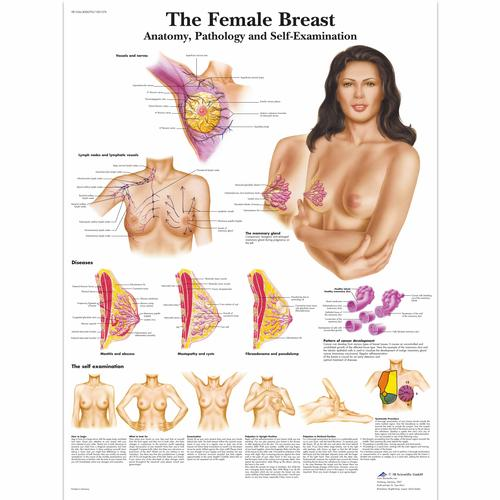 The Female Breast Chart - Anatomy, Pathology and Self-Examination, 4006705 [VR1556UU], Women's Health Education