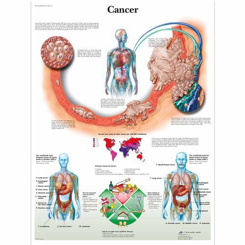 Anatomical Charts and Posters - Anatomy Charts - Pathology Charts ...