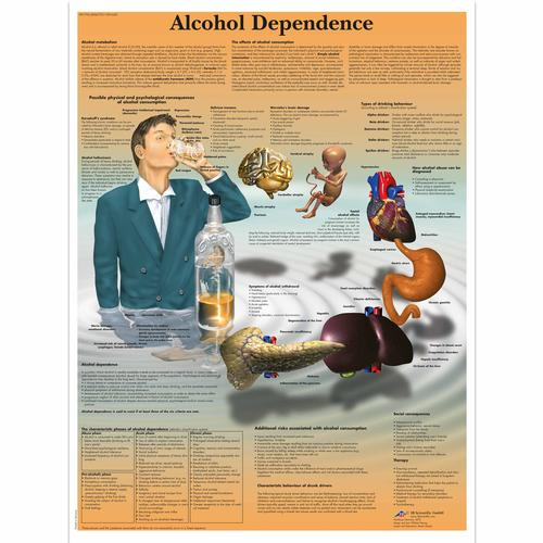 Alcohol Dependence Chart, 1001620 [VR1792L], Drug and Alcohol Education