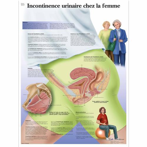 incontinence urinaire chez la femme 4006785 vr2542uu gynaecology 3b scientific. Black Bedroom Furniture Sets. Home Design Ideas