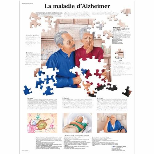 La maladie d'Alzheimer, 4006796 [VR2628UU], Brain and Nervous system