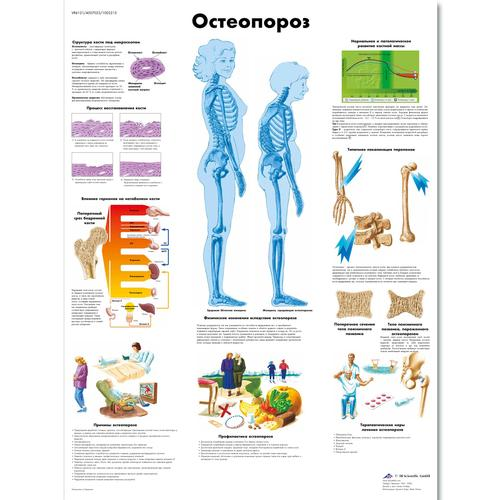 Osteoporosis Chart 1002215 Vr6121l Zvr6121l