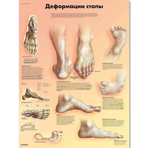 Deformities Of The Feet Chart 1002234 Vr6185l