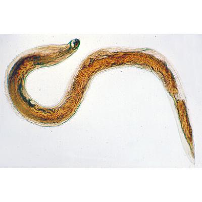 A geohelminth a Rishta Trichinella pinworm
