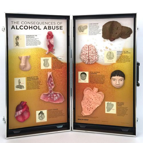 "W43053: ""Consequences of Alcoholism"", 3D Info Board"