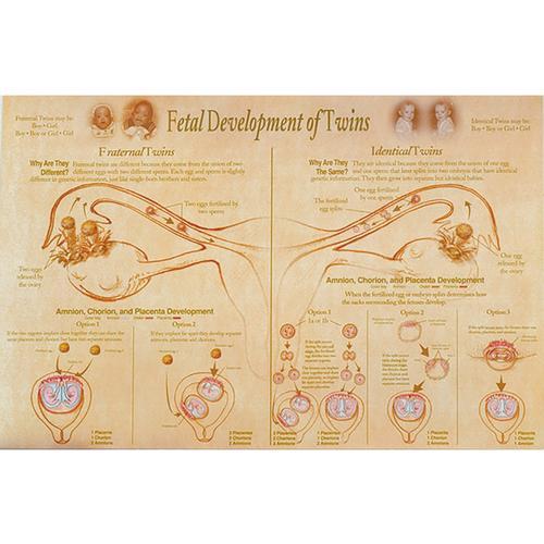 Fetal Development Presentation Of Twins Chart 1018282 W43094