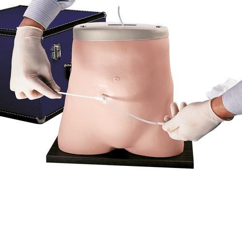 Adult peritoneal dialysis