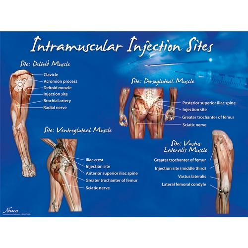 intramuscular injection sites poster 1018427 w44783 lf00695