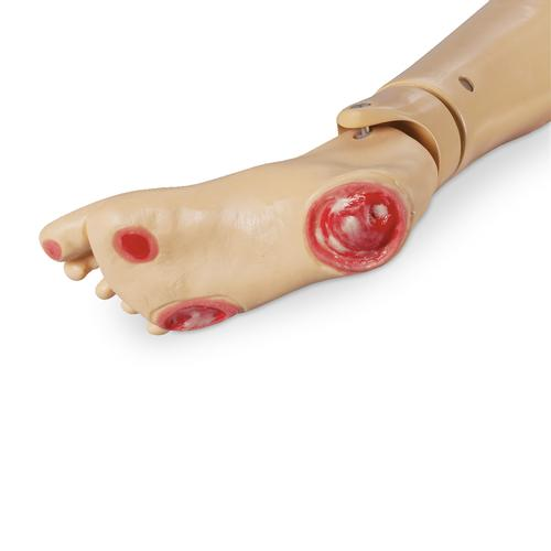 Geri and KERi Pressure Ulcer Foot, 1017985 [W44784F], Geriatric Patient Care