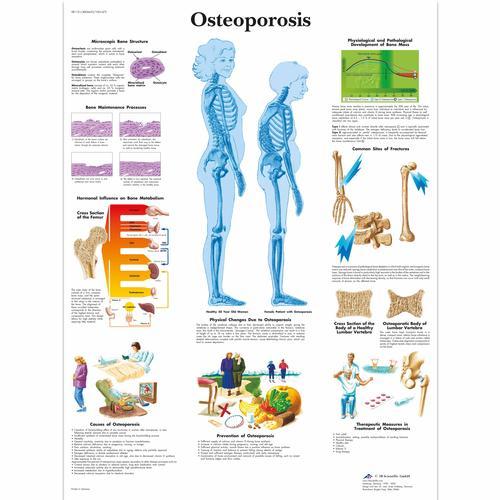 Cómo prevenir la osteoporosis? - Paperblog