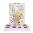 Meniscus Knee Model with 6 Tears, 1019500, Joint Models