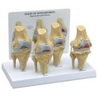 4-Stage Osteo Knee Model Set, 1019502, Joint Models