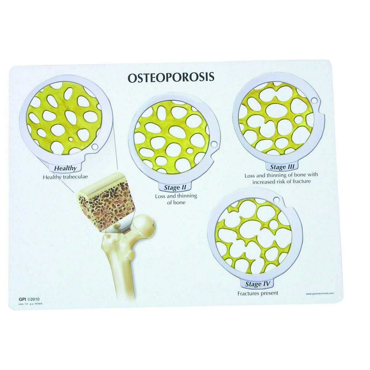 osteoporosis Osteoporosis is a major health problem, affecting more than 44 million americans and contributing to an estimated 2 million bone fractures per year.