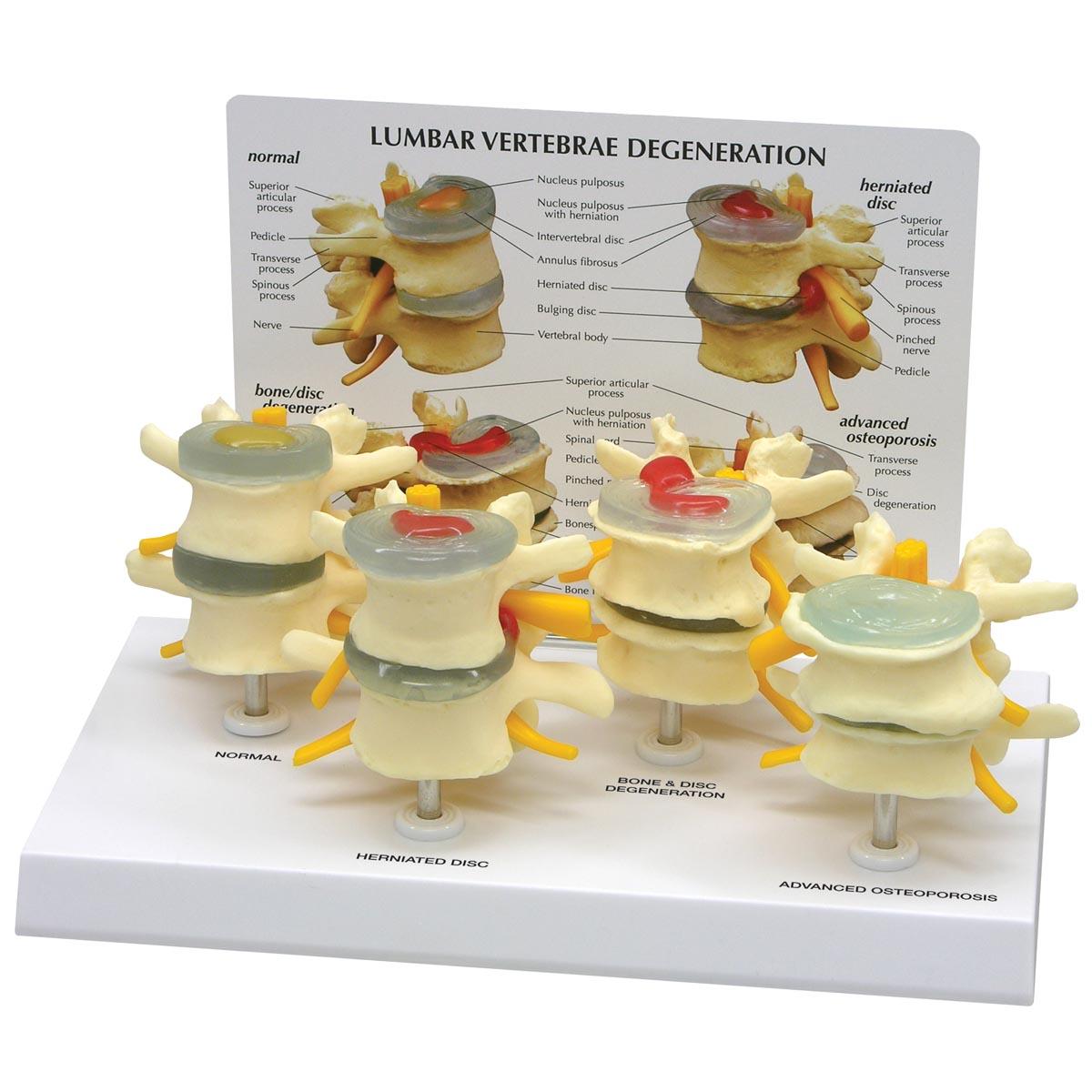 4 Stage Vertebrae Model Set 1019512 1760 Anatomical Models