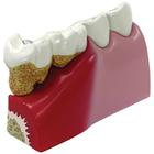 Teeth Model, 1019539, Dental Models