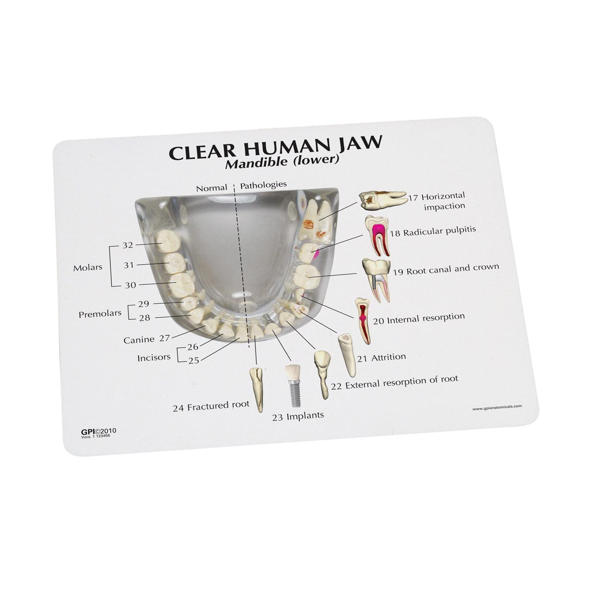 Clear Human Jaw with teeth model - 1019540 - 2861 - Anatomical Tooth ...