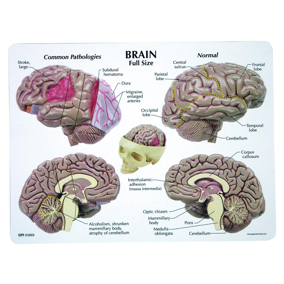 Brain Model - 1019542 - 2900 - Human Brain Models | Models of Human ...
