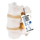 3 Human Lumbar Vertebrae, Flexibly Mounted - 3B Smart Anatomy, 1000151 [A76/8], Vertebra Models
