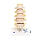 Stages of Disc Prolapse and Vertebral Degeneration - 3B Smart Anatomy, 1000158 [A795], Vertebra Models