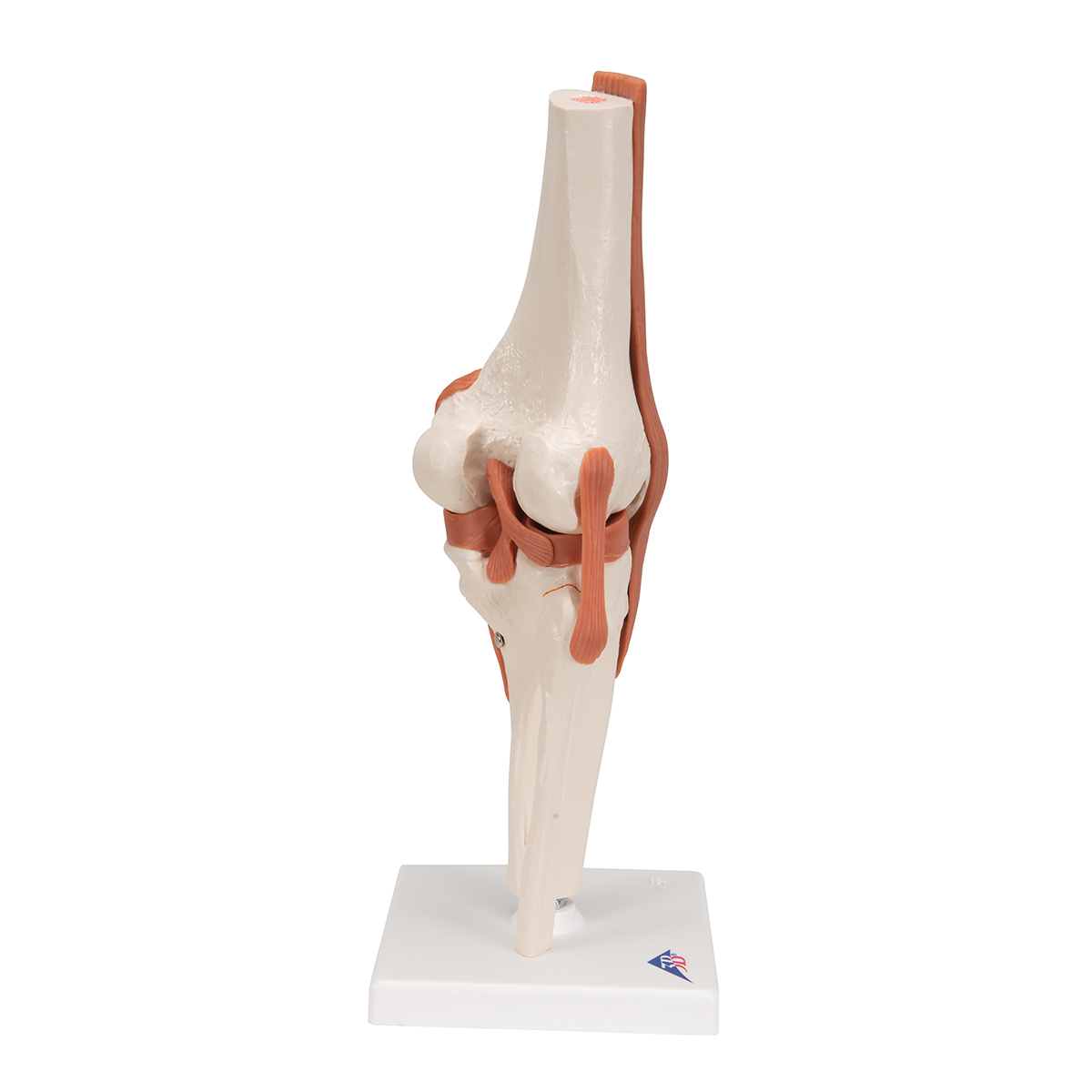 3 Year Warranty Axis Scientific Patella Bone Model Left Includes ...