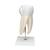 Giant Molar with Dental Cavities Human Tooth Model, 15 times Life-Size, 6 part - 3B Smart Anatomy, 1013215 [D15], Dental Models (Small)