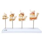 Dentition Development Model - 3B Smart Anatomy, 1000248 [D20], Dental Models