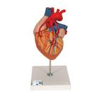 Heart with Bypass, 2 times life size, 4 part, 1000263 [G06], Human Heart Models