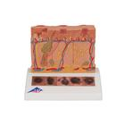 Skin Cancer Model, 1000293 [J15], Skin Models