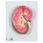 Kidney Section Model, 3 times Full-Size - 3B Smart Anatomy, 1000296 [K10], Urology Models