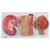 Human Kidney Section Model with Nephrons, Blood Vessels & Renal Corpuscle - 3B Smart Anatomy, 1000299 [K11], Urology Models (Small)