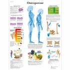 Osteoporose Chart, 1001306 [VR0121L], Arthritis and Osteoporosis Education