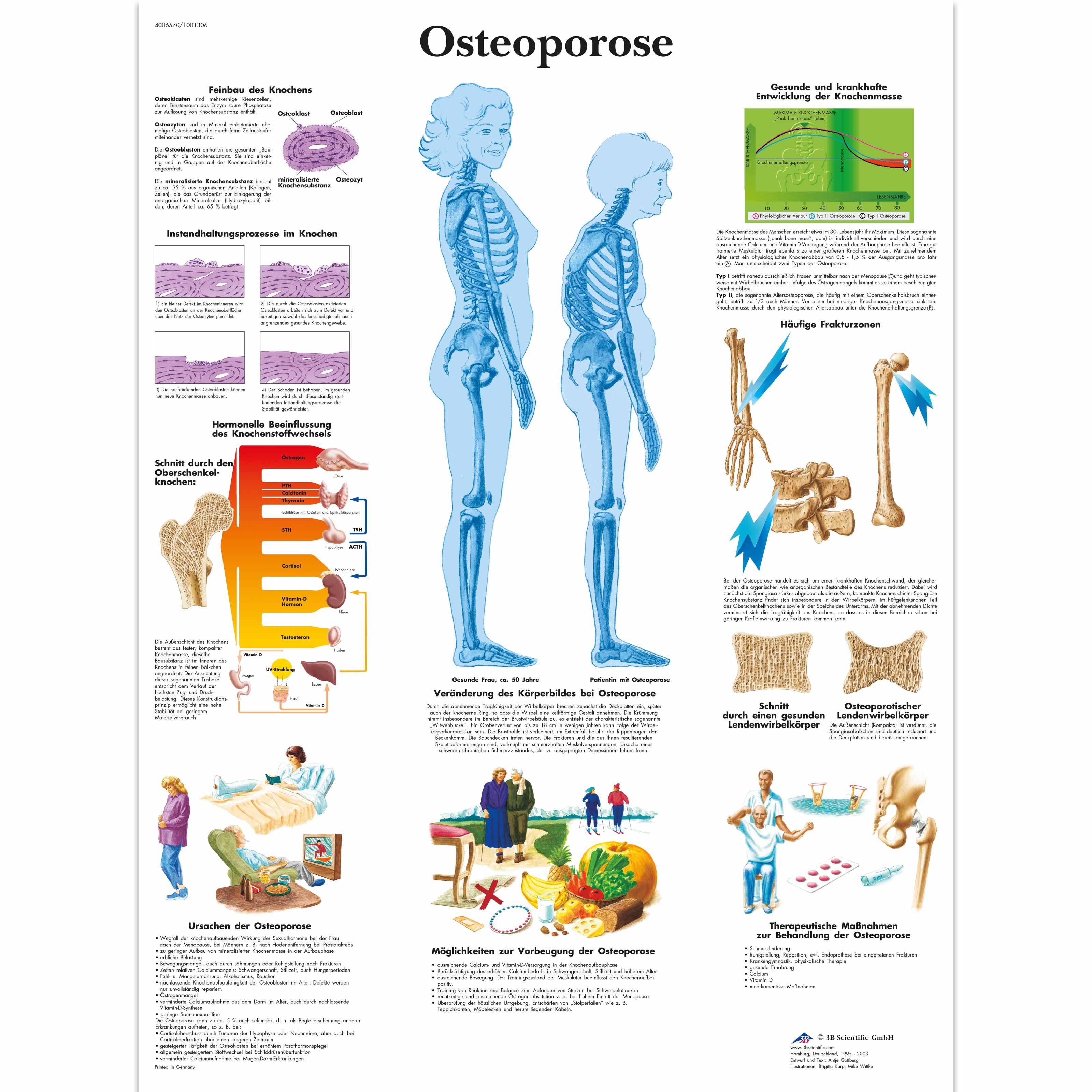 Osteoporose Chart - 1001306 - 3B Scientific - VR0121L - Arthritis ...