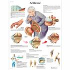 Arthrose, 4006571 [VR0123UU], Arthritis and Osteoporosis Education