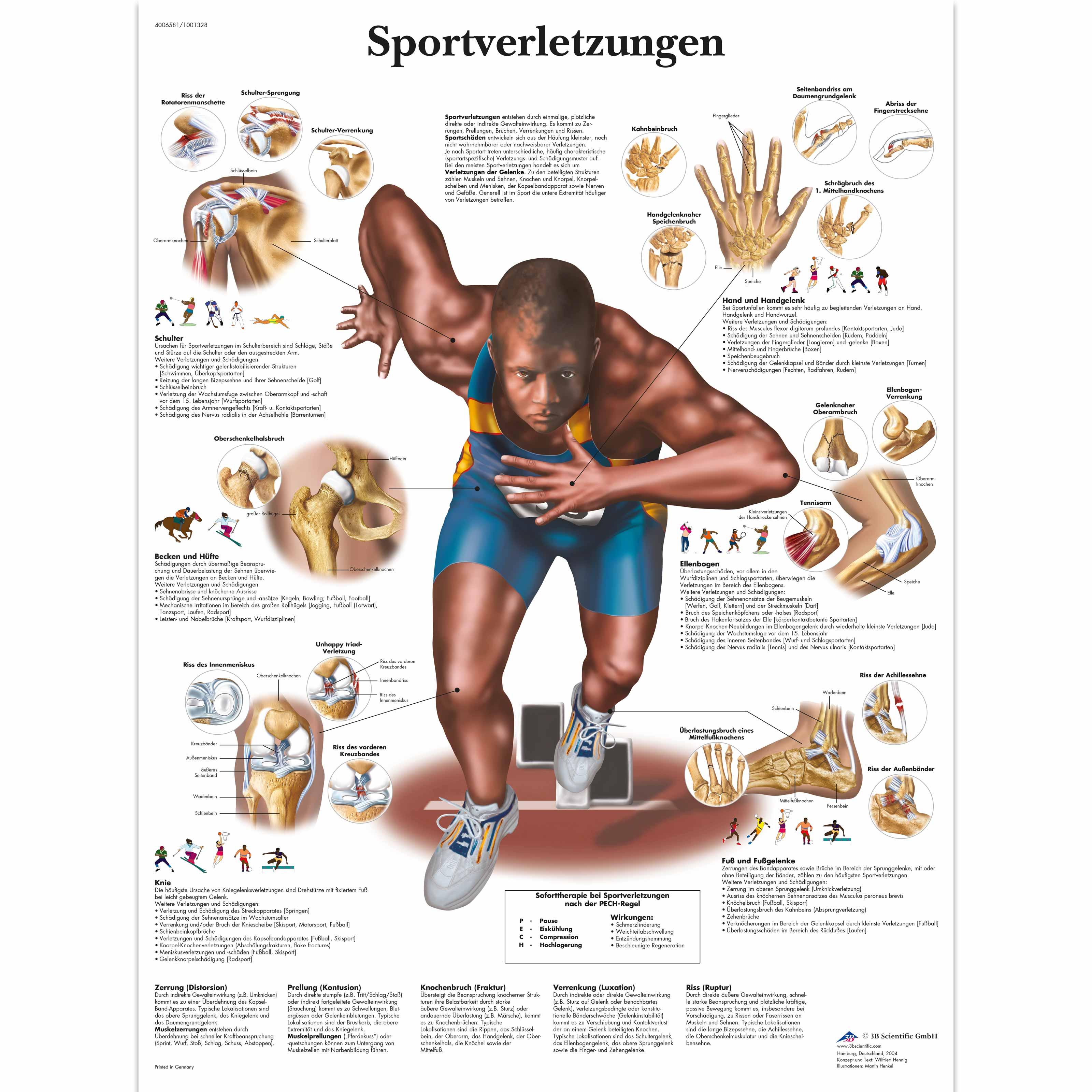 Sportverletzungen - 4006581 - VR0188UU - Muscle - 3B Scientific