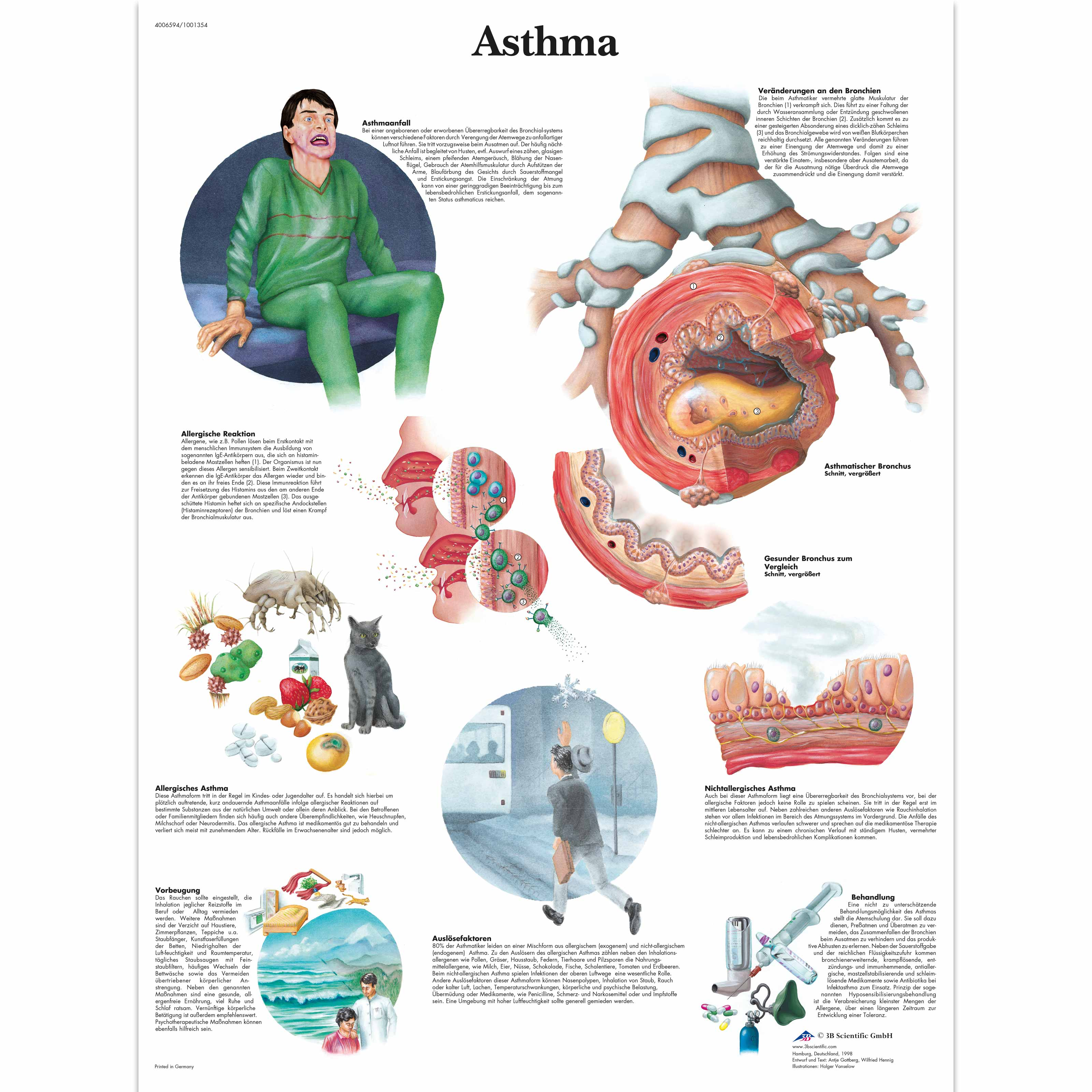 Niedlich Asthma Physiologie Und Anatomie Zeitgenössisch ...