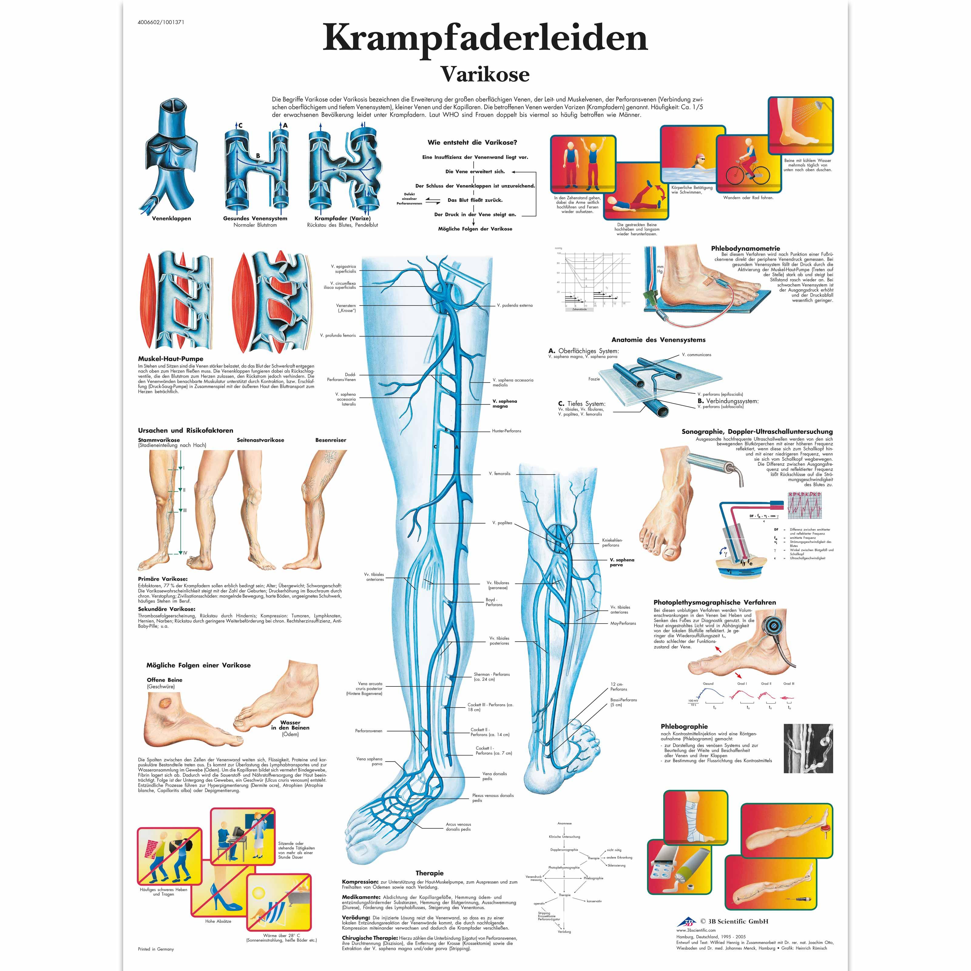 Krampfaderleiden, Varikose - 4006602 - VR0367UU - Cardiovascular ...