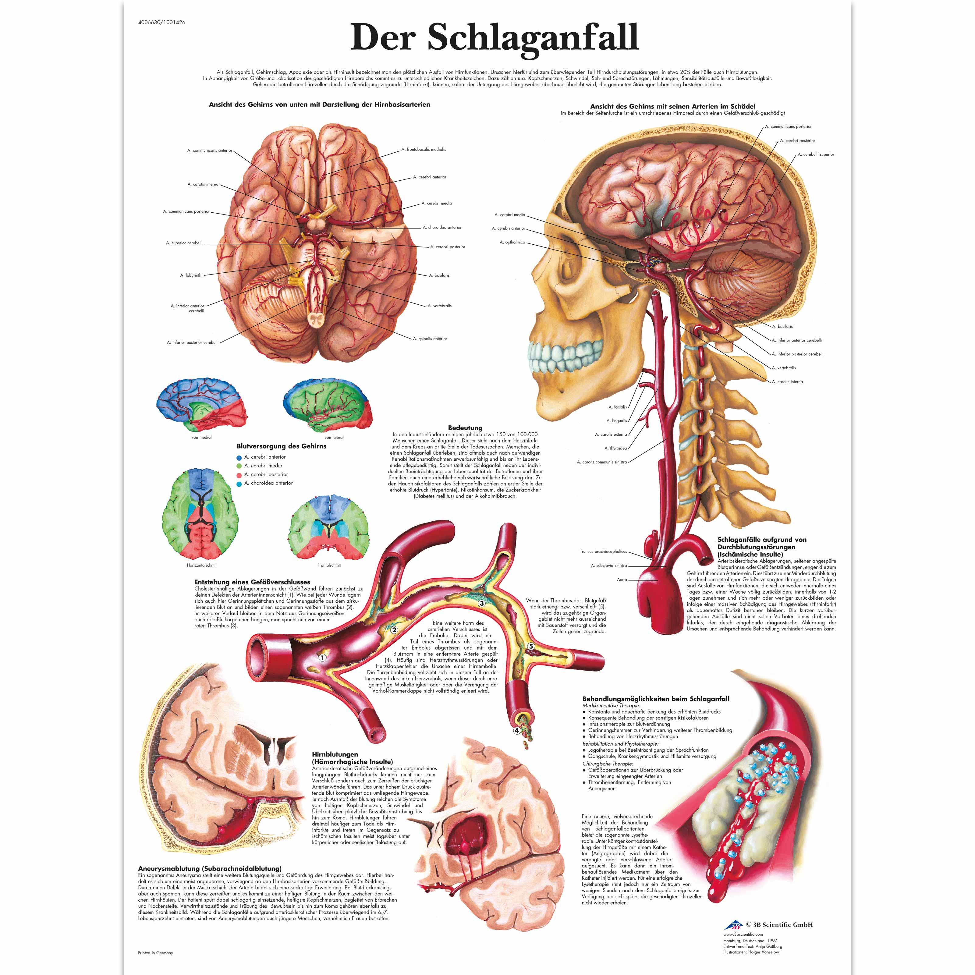 Schlaganfall - 1001426 - VR0627L - Cardiovascular System - 3B Scientific