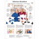 Alzheimer-Krankheit, 4006631 [VR0628UU], Brain and Nervous system