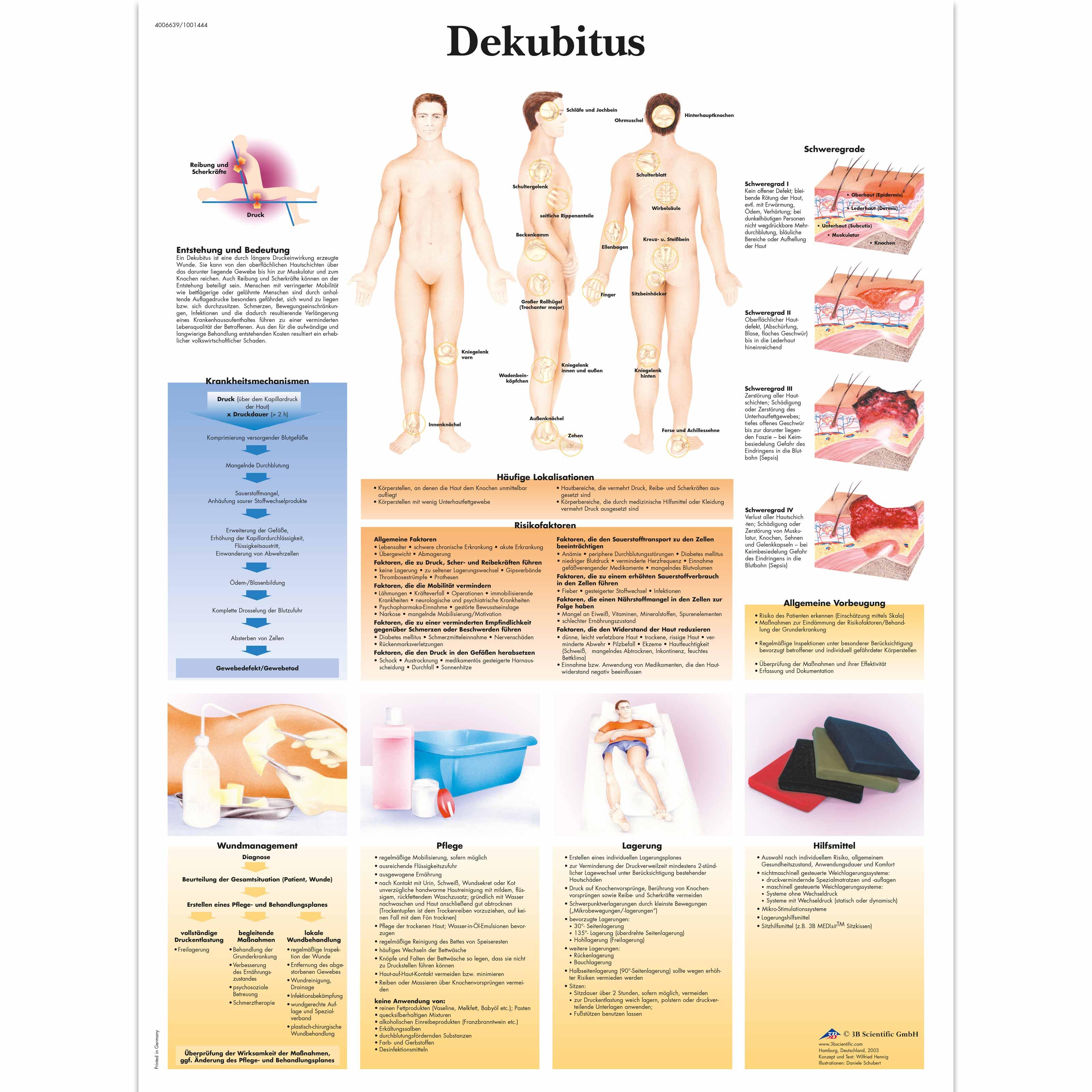 Dekubitus - 1001444 - VR0717L - Skin - 3B Scientific